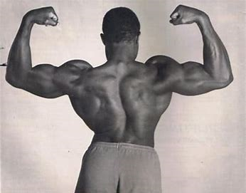 Powerlifter Lamar Gant shown here with idiopathic scoliosis, curvature of the spine.